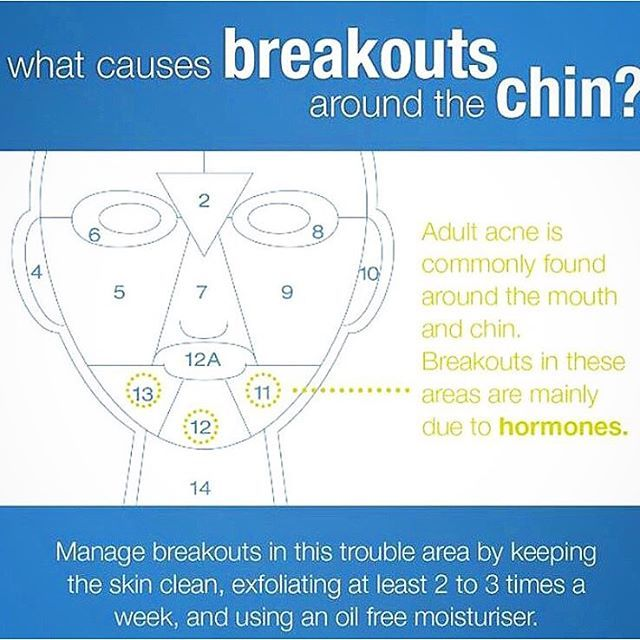 how to get rid of breakouts on your chin