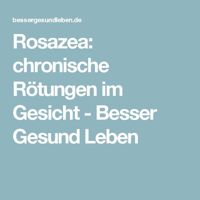 Rosazea: chronische Rötungen im Gesicht - Besser Gesund Leben
