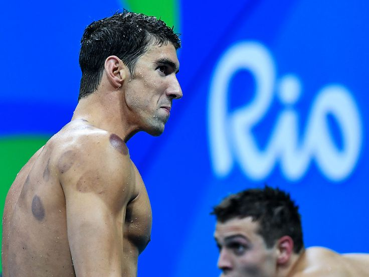 What Are Those Bruises on Michael Phelps? Olympic Champion Is Practicing Cupping  and He's Not the Only One