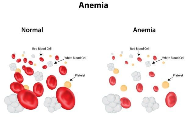 Anemia | Herbal Remedies for Anemia