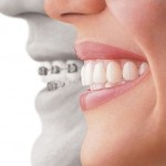 Clear Retainers after Braces