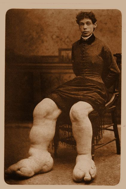 I found this photo labelled Freaky medical/ human oddities - how sad. I see a human being with a condition that probably caused extreme discomfort, disability and social isolation.
