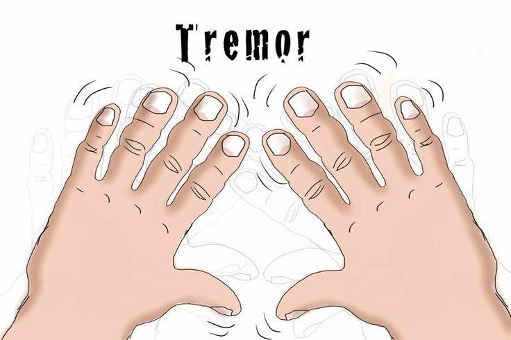 El Titremesi (Tremor) Neden Olur? Hangi Hastalıklarda Görülür?