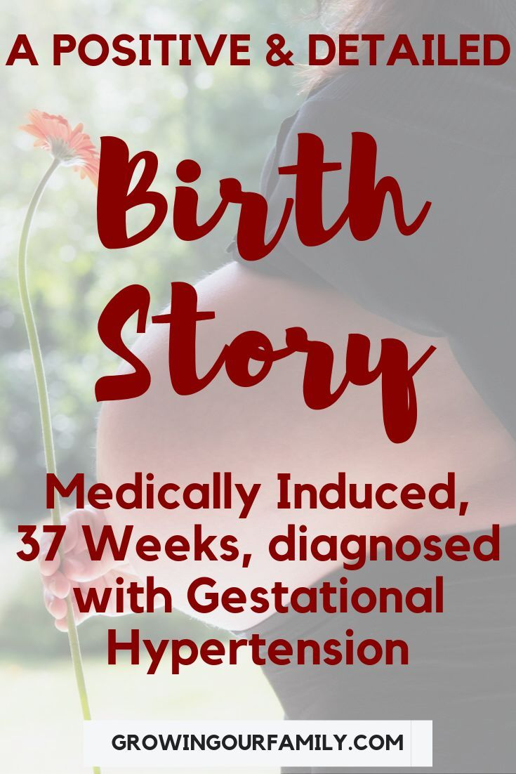 Without stories epidural induction positive Positive induction