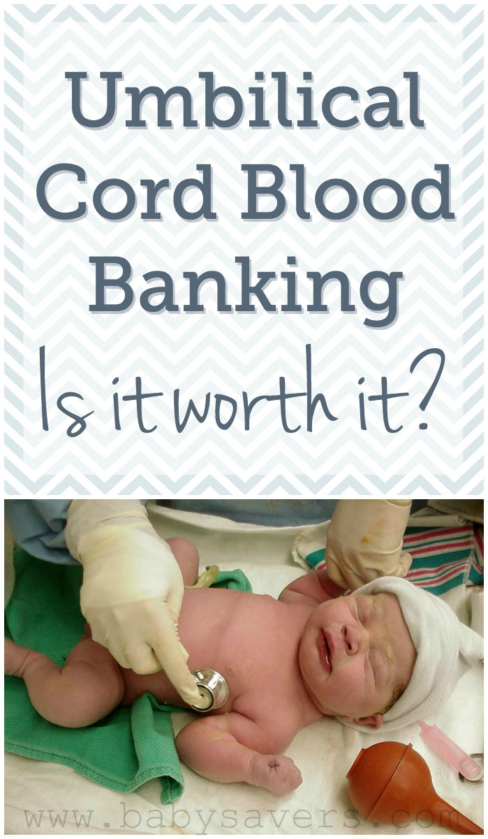 Cord blood banking pros, cons. Is cord blood banking worth it? Every parent-to-be should read this article to help make this decision during pregnancy.