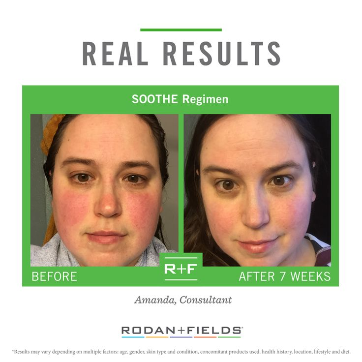 18 best images about Soothe for sensitive skin on ...