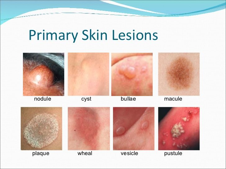 Skin Lesions | Photo Morgue- Trauma | Skin problems, Nurse ...