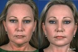 Facial exercises to tone chin and muscles to reduce sagging and wrinkles Non surgical facelift