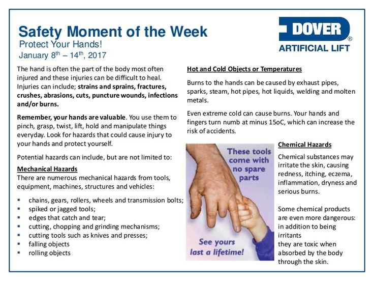 Protect Your Hands! Alberta Oil Tool's #Safety Moment of the Week 09-Jan-2017