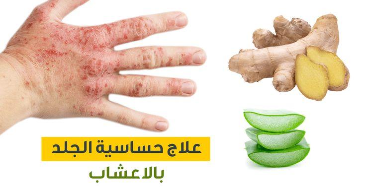 علاج حساسية الجلد بالاعشاب ويب طب