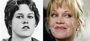 Melanie Griffith Before Plastic Surgery - Bing Images