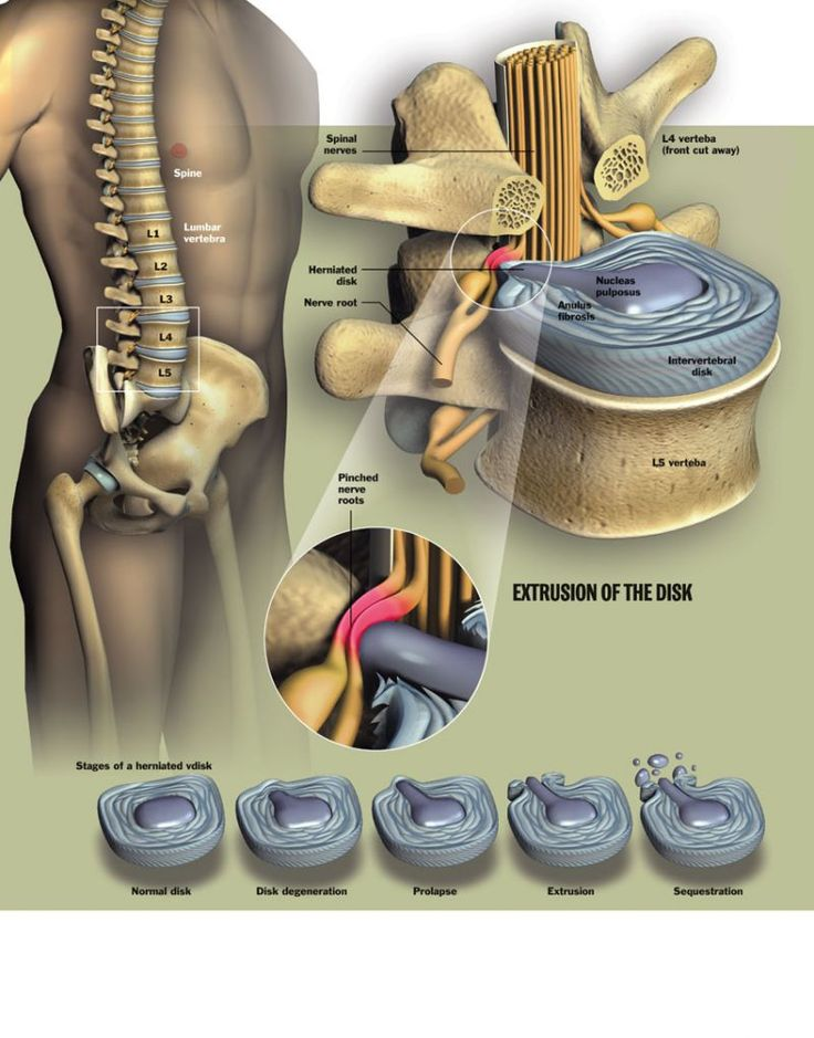 A herniated disk illustrated, I see why mine are so painful