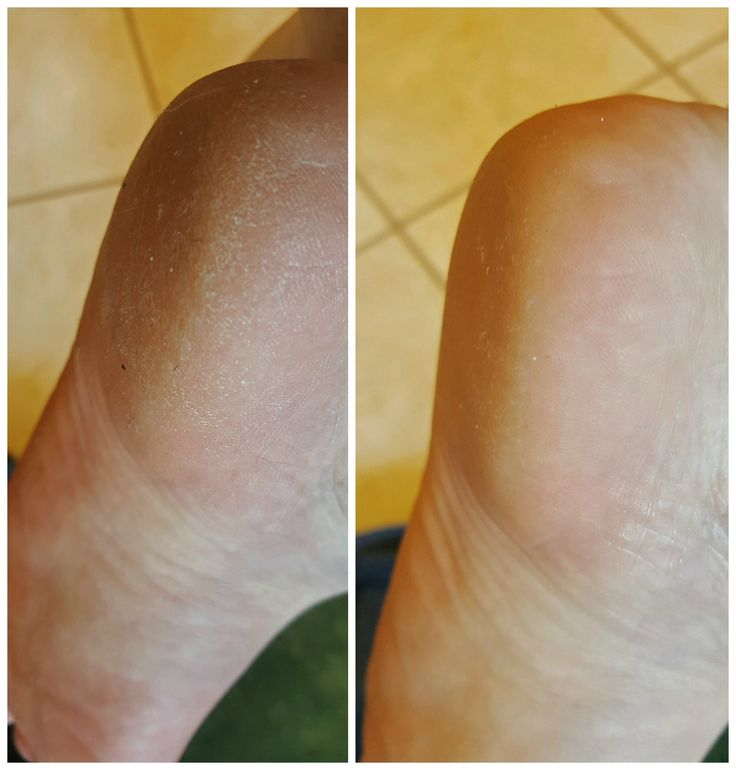 Thank you Rodan and Fields for helping my feet get flip flop ready!  I did ONE application of the Micro Dermabrasion paste to my over dry and flaky heal today. This is the before and after. It took less than 5 minutes too!  It can go on your feet, knees, elbows, hands, and face. *I would not use it on any place with red or irritated skin.   What a difference!