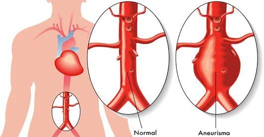 Hallan un medicamento que puede reducir la formación de aneurismas