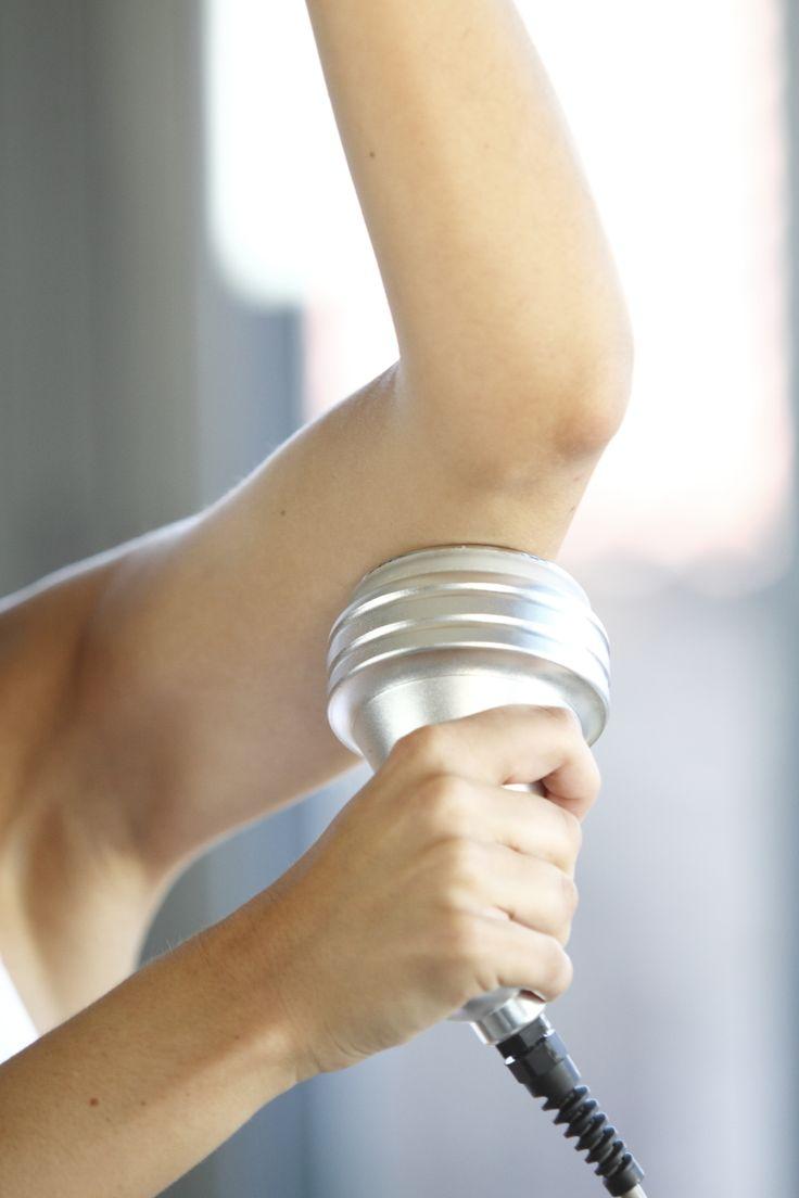 Cavitacion y Radiofrecuencia estetica con Cavita en cara interna de brazos