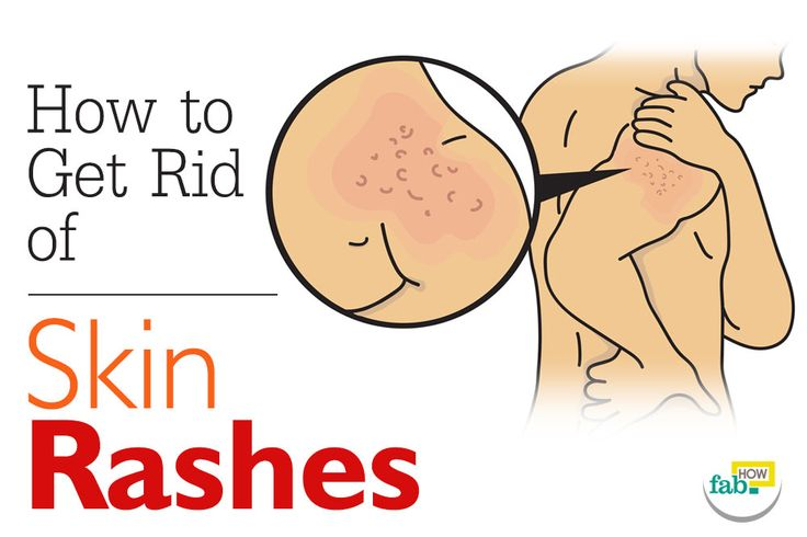 Itching, pain, discomfort and irritation – not a single good thing comes out of having a rash. While painful rashes can give you hell, the itchy ones can turn you into a scratching monkey. Some rashes go away on their own, but some can spread and become more aggravated if ignored. A skin rash can...