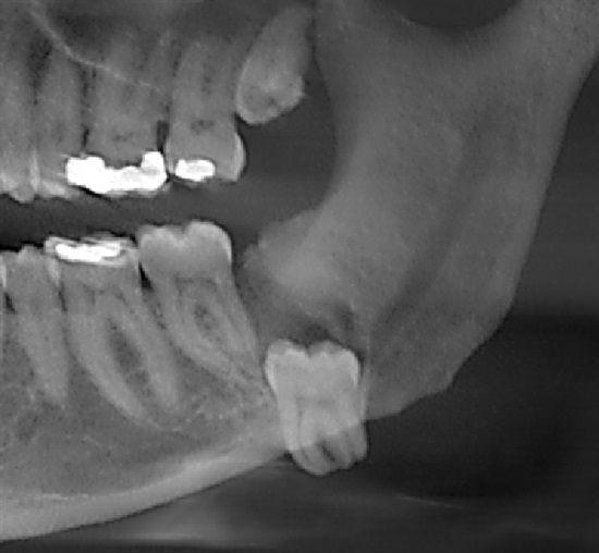 Dentaltown - What dental procedure do you enjoy performing most as a generalist?