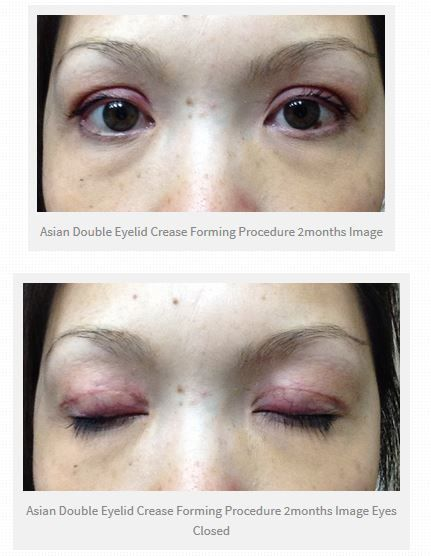 Would you like to see how the healing progresses with this informative photo documentary of someone's healing from an Asian Eyelift Blepharoplasty Crease Formation.