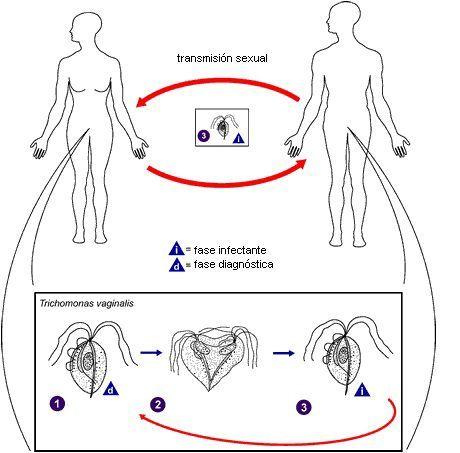 Tricomoniasis una enfermedad de transmisión sexual muy común
