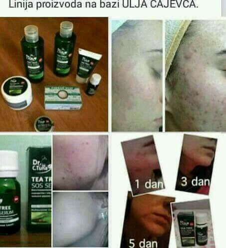 Treat all skin types. Available in South Africa, Pretoria. Watsupp: 0765163465