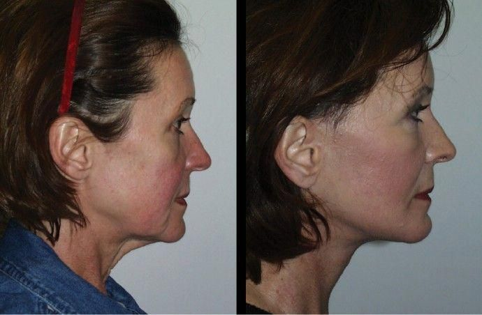 A well-positioned chin makes the entire chin jaw line appear sharper, the… – #…