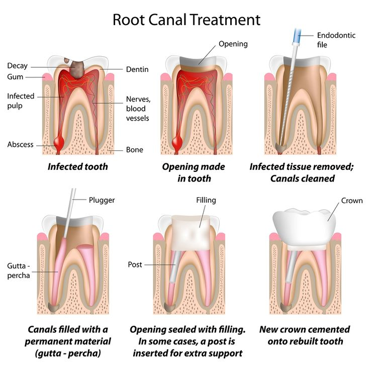 Treatment for a broken, split, or broke tooth is determined by how serious the damage is. The repair can typically be performed in one office check out, if simply a little piece of enamel broke off. The tooth could require a more costly and drawn-out repair service if the damage is extreme. Right here are a couple of means your broken or cracked tooth might be fixed by Dr. Braegger.  Click the link below also if you need more info about this pin. http://www.drbraegger.com/general-dentistry/