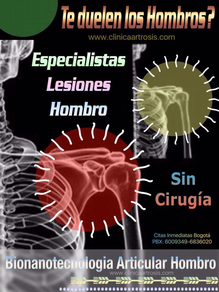 Le duelen los hombros, presenta artrosis de hombro! Consulte a médicos especialistas en ortopedia y traumatología en Bogotá. Tratamientos ideales para todas las edades sin cirugías  en Bogotá. Visítenos en la Clínica de Artrosis y Osteoporosis www.clinicaartrosis.com PBX: +571-6836020, Teléfono Movil: +57-300-2597226 en Bogotá - Colombia.