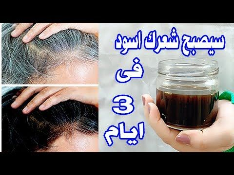 في 3 أيام ضعيها لشعرك الابيض سيصبح اسودكالحرير ينمو شعرك بغزارة لن يتساقط ينبت الفراغات يحارب الصلع Youtube Hair Growth Challenge Beauty Hair Growth