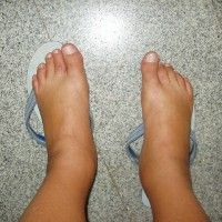 Swelling and Fibromyalgia~ this is the first I've heard of swelling in Fibromyalgia sufferers. I was swollen for 3+ weeks & none of my doctors knew why or what to do. So glad I stumble across this