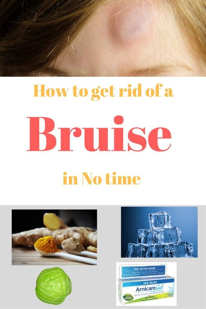 Natural Way To Get Rid Of Bruises Fast