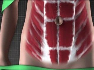 Tummy Tuck Surgery (Abdominoplasty) video illustration of the procedure. http://www.plasticsurgeryhub.com.au/feature/tummy-tuck-abdominoplasty/ #PSHubplasticsurgery #CosmeticSurgery #PSHubsurgicalprocedure #PSHubCosmeticReconstructiveSurgery #plasticsurgeryhub #TummyTuckProcedure #AbdominoplastyProcedure #FatRemoval