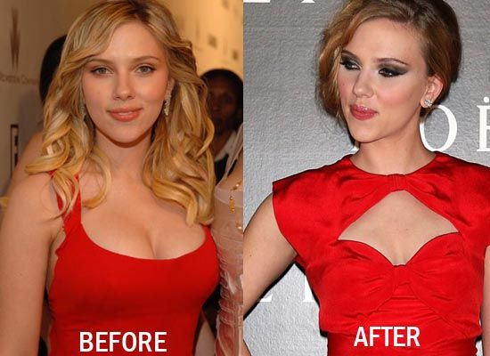 E Breast Implants Before And After 17 Best images about C...