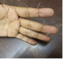 If you are looking for Acupuncture clinic in Delhi? Just visit at Acupuncture Healing Point! That is one of the most reputed clinics in Delhi and providing best services at affordable prices. For more information call at +91-9213930235!