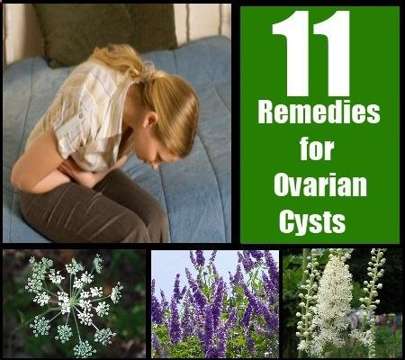 Most women in their childbearing years experience the problem of ovarian cysts. These are fluid-filled growths in either one or more ovaries.   Although in most cases these cysts go away by themselves, there may be occasions in which they grow big enough to rupture and damage or displace the ovary.It is better to nip the ovarian cyst at its bud through surgery or natural treatments. Here are some herbs that remove ovarian cysts naturally. Best Herbal Remedies for Ovarian Cysts Black Co...