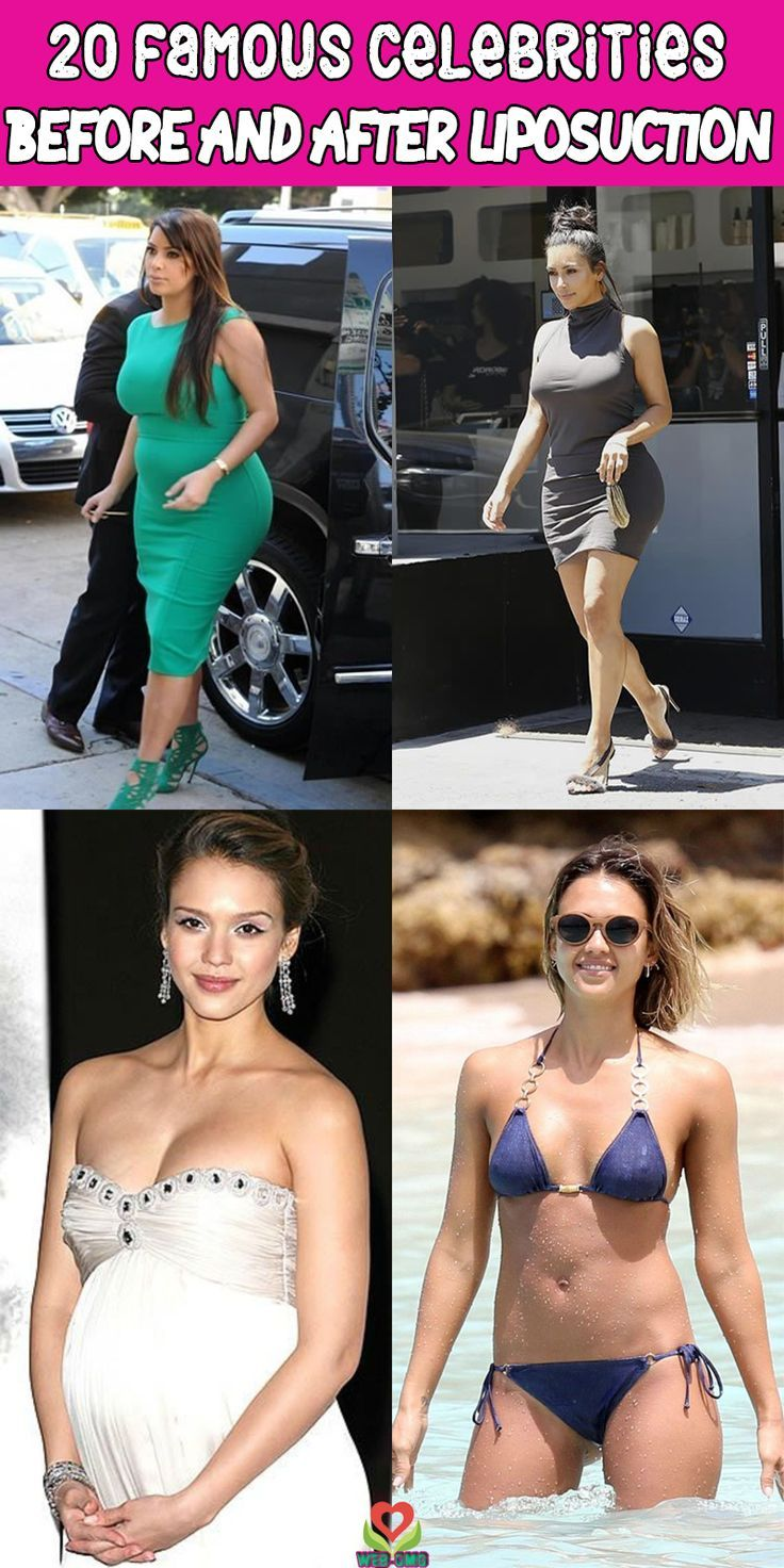 20 Famous Celebrities Before And After Liposuction – #celebrities #famous #Lipos…