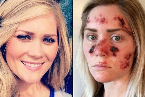 Cette femme a été défigurée après avoir abusé des bancs solaires ! - soirmag.be
