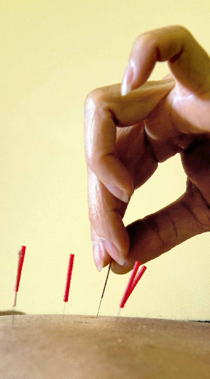 68 best acupuncture to treat disease images on pinterest