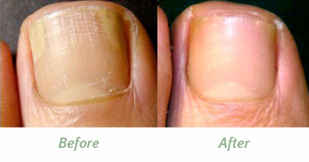 Tea Tree Oil for Toe Nail Fungus Treatment In this article, we are going to discuss the use of tea tree oil for toe nail fungus. Tea tree oil is derived from the leaves of Melaleuca alternifolia. It is pale yellow in color and has soothing odor. It is useful in treating various problems. Direct consumption of tea tree oil is toxic so ... #AvoidToeNailFungus, #BenefitsOfTeaTreeOil, #BestWayToGetRidOfToenailFungus, #CureToeNailFungus, #CureToeNailFungusAtHome, #Fungus, #GetR