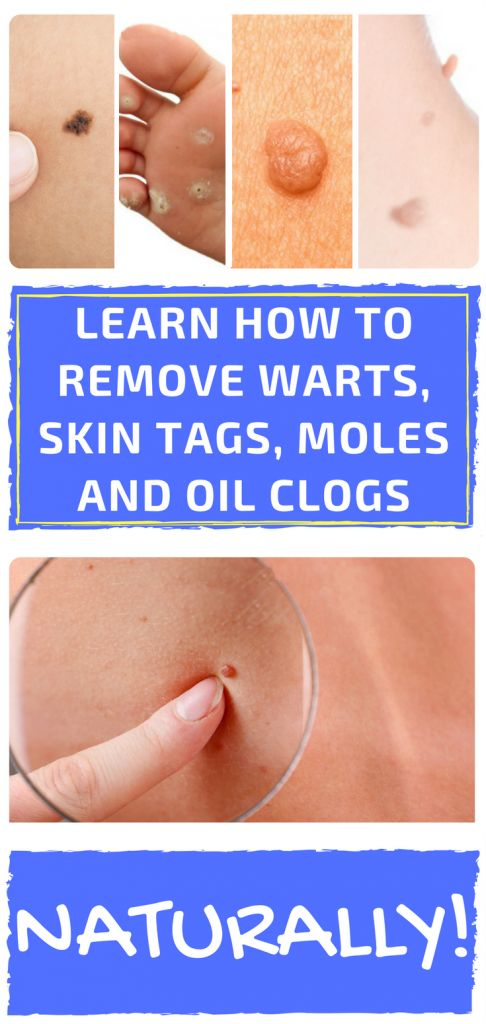 how to get rid of slowly rising chest moles