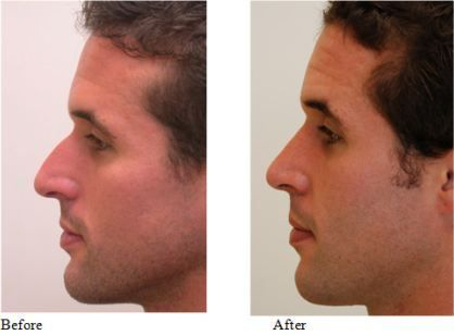 #rhinoplasty #before #after #male #andMale Rhinoplasty – Before and AfterMale Rh…
