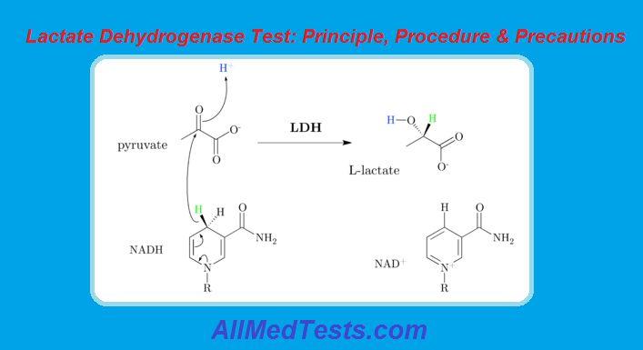 Lactate Dehydrogenase Test: Principle And Procedure