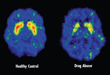 Two brain scans. The first scan shows a healthy brain. The second scan shows decreased dopamine transporters in the brain of a drug abuser