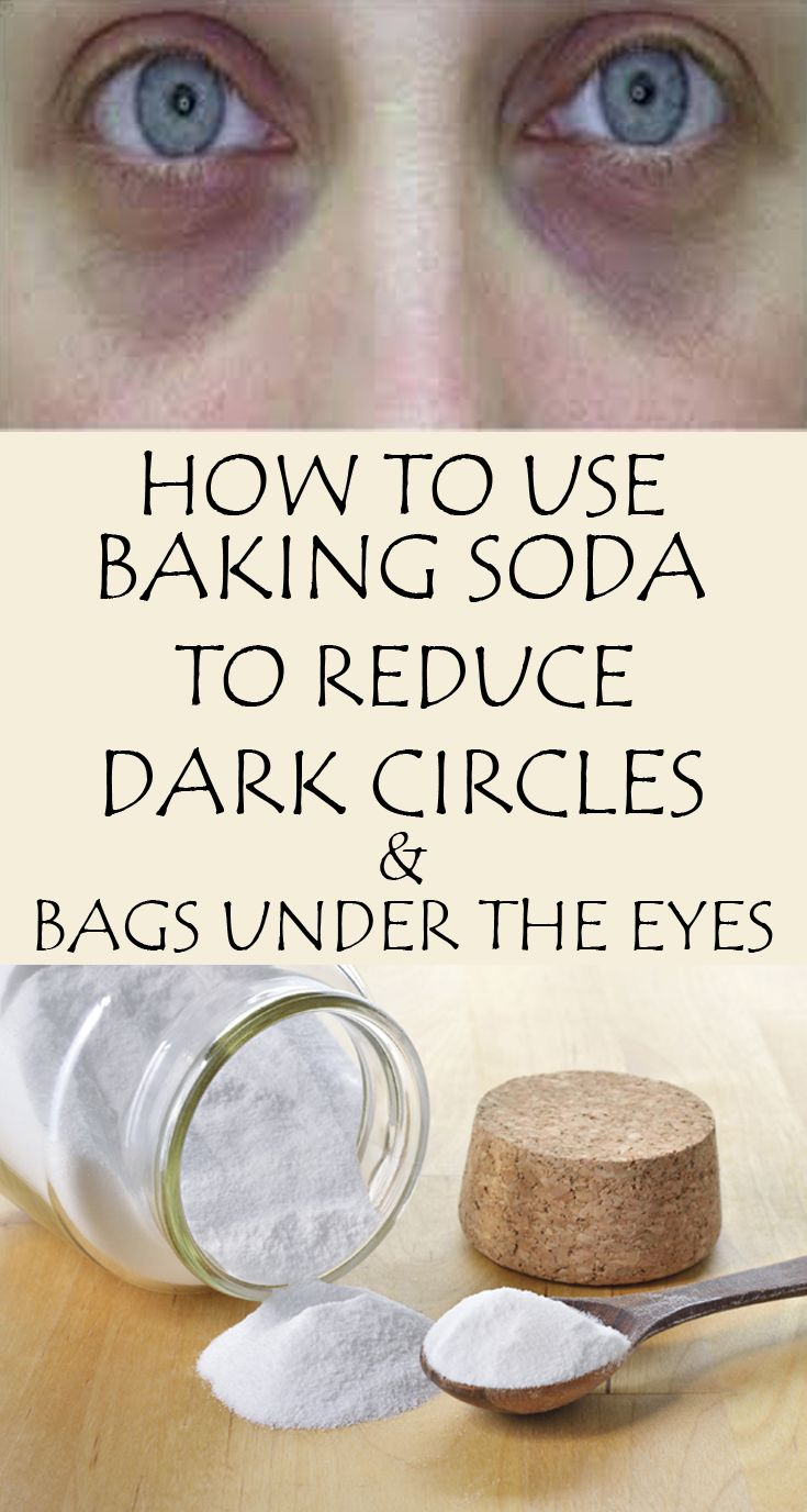 More and more people are convinced of the benefits of baking soda, so they got to use it frequently in everyday life, either for cooking, cleaning or as a beauty product. Especially women appreciate it as a beauty product. The most effective face masks contain baking soda. The recipe below helps eliminate dark circles and …