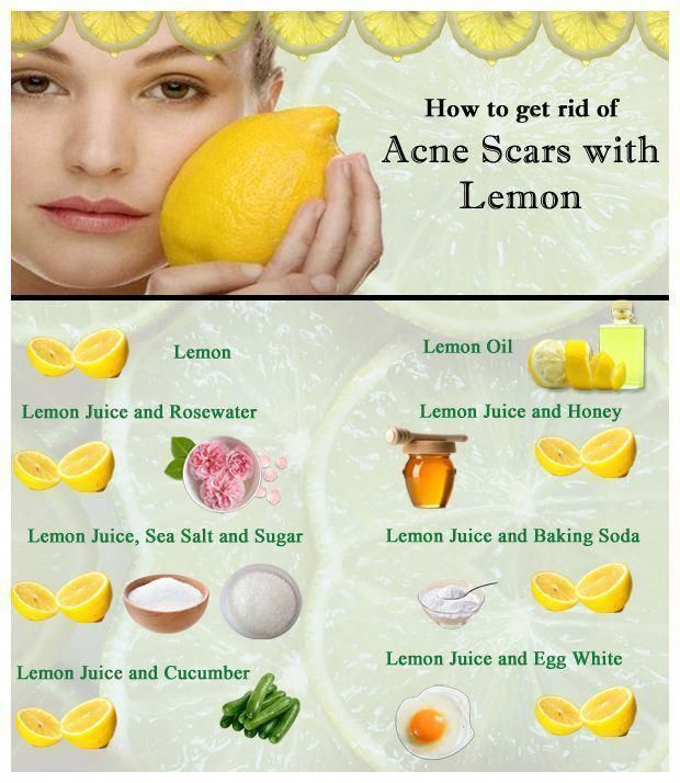 baking soda and lemon juice for acne