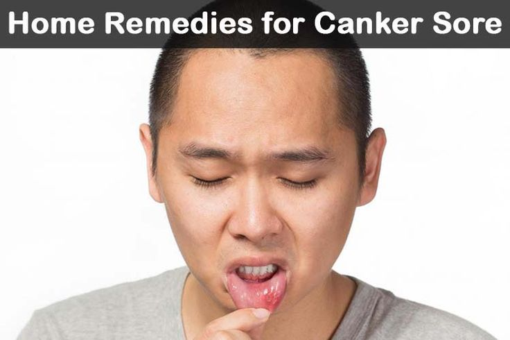 Heal Canker Sores The Natural Way Homesteading - The Homestead Survival .Com