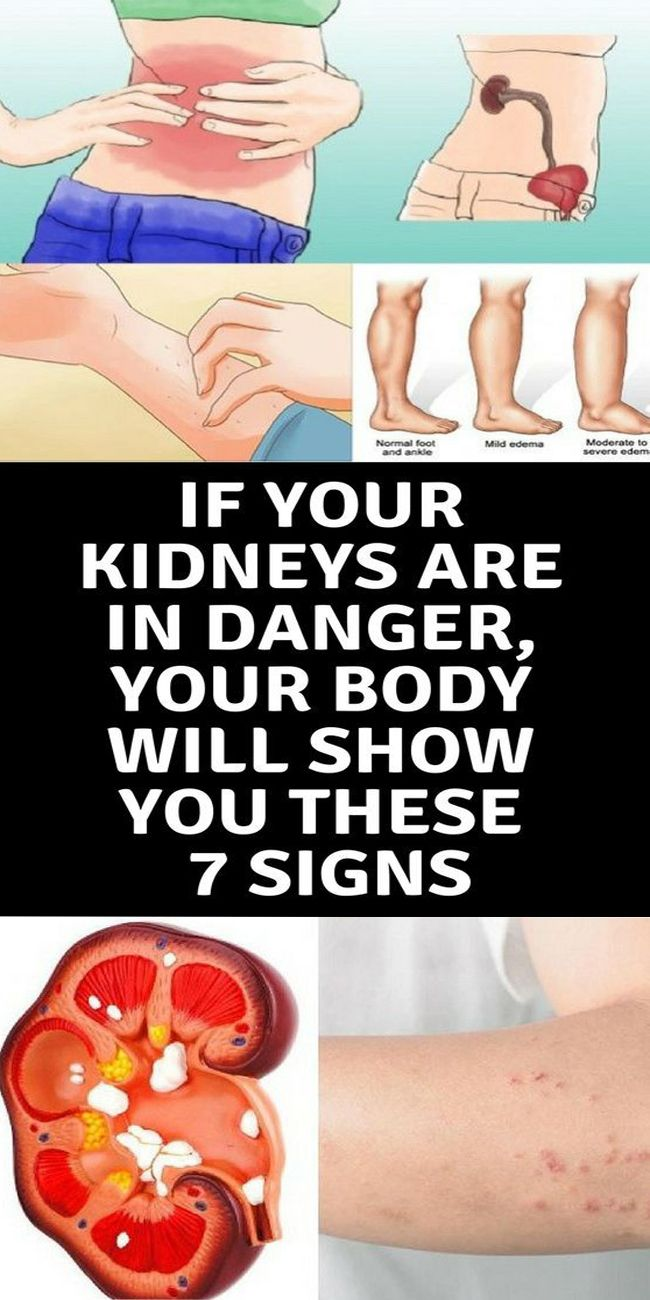 IF YOUR KIDNEYS ARE IN DANGER, YOUR BODY WILL SHOW YOU THESE 7 SIGNS!