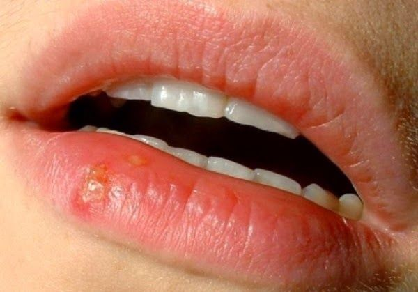 Common Causes of Canker Sores   Health Digezt