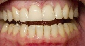 Common questions about dental veneers