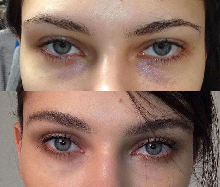 MUSINGS OF A MAKEUP ARTIST: Before/After: My New Go-To Natural Face/All About The Brows