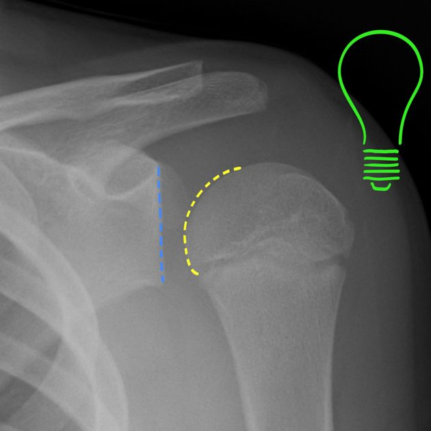 Posterior shoulder dislocation are far less common than an anterior shoulder dislocation.  Posterior dislocation may be missed initially on frontal radiographs as the humeral head appears to be almost normally aligned with the glenoid. The internally rotated humeral head takes on a rounded appearance known as the lightbulb sign.  All about it here: http://radiopaedia.org/articles/posterior-shoulder-dislocation